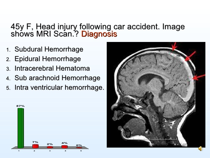 FORT LAUDERDALE BRAIN INJURY CAR ACCIDENT