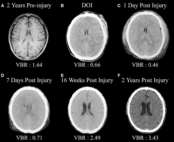 ACCIDENT BRAIN INJURY PICTURES