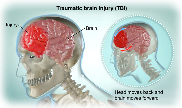 car accident image brain injury