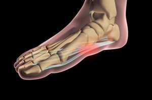 angle pain