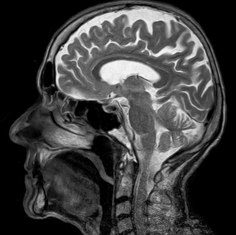 Fort Lauderdale brain injury lawyer